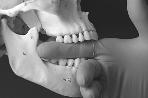 TMJ Dysfunction – Temporo Mandibular Joint